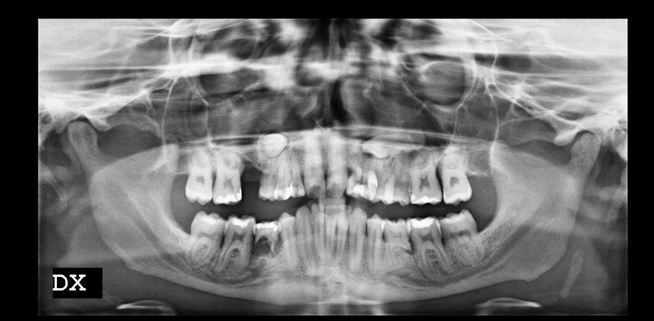 Agenesia dentale e riassorbimento osseo