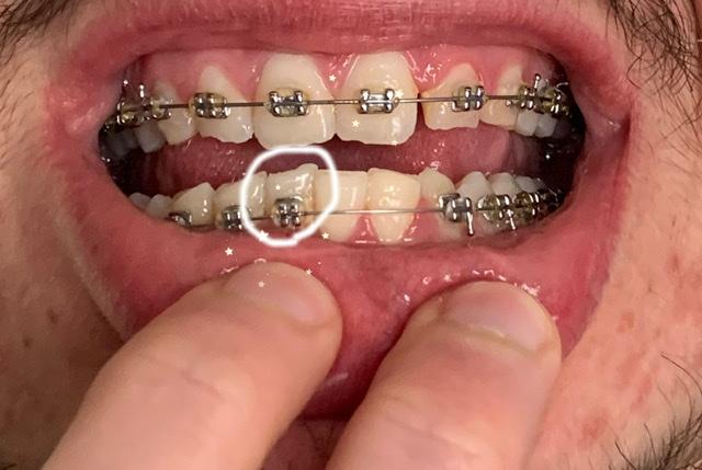 E' possibile ricostruire un dente avendo l'apparecchio?