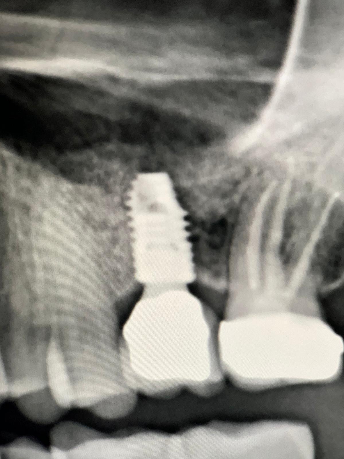 Lo scorso anno mi è stato messo un impianto con innesto osso sull'arcata superiore sinistra
