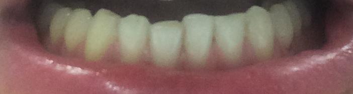 Il bite può essere sufficiente al contenimento dei denti se decidessi di rimuovere lo splintaggio?