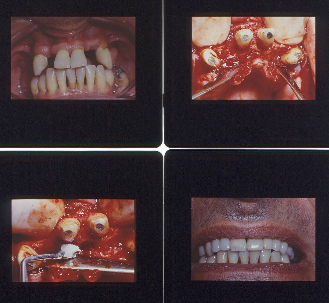 Parodontite Grave, prima, durante e dopo la terapie chirurgica Parodontale e Riabilitazione completa