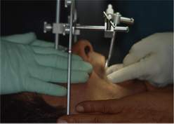 Arco facciale di trasferimento per la corretta diagnosi di malucclusioni, bruxismo, progettazione di Bite Plane, visita Gnatologica