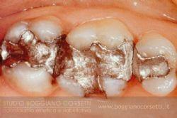 amalgama-dentale-4.jpg