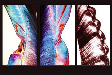Dr. Gustavo Petti Parodontologo di Cagliari e Dott.ssa Claudia Petti Odontoiatra e Pedodontista Da un prelievo Istolopatologico del Dottor Perrini