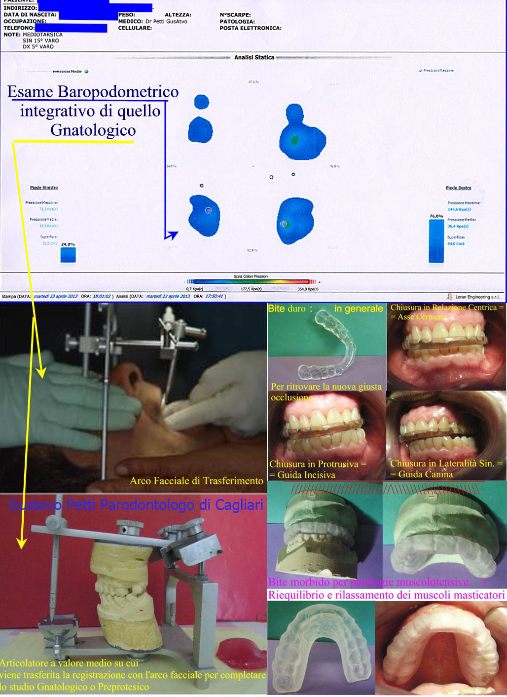 Parte di Analisi Gnatologica e Stabilometrica e diversi tipi di Bite. Da Dr. Gustavo Petti Parodontologo Gnatologo di Cagliari