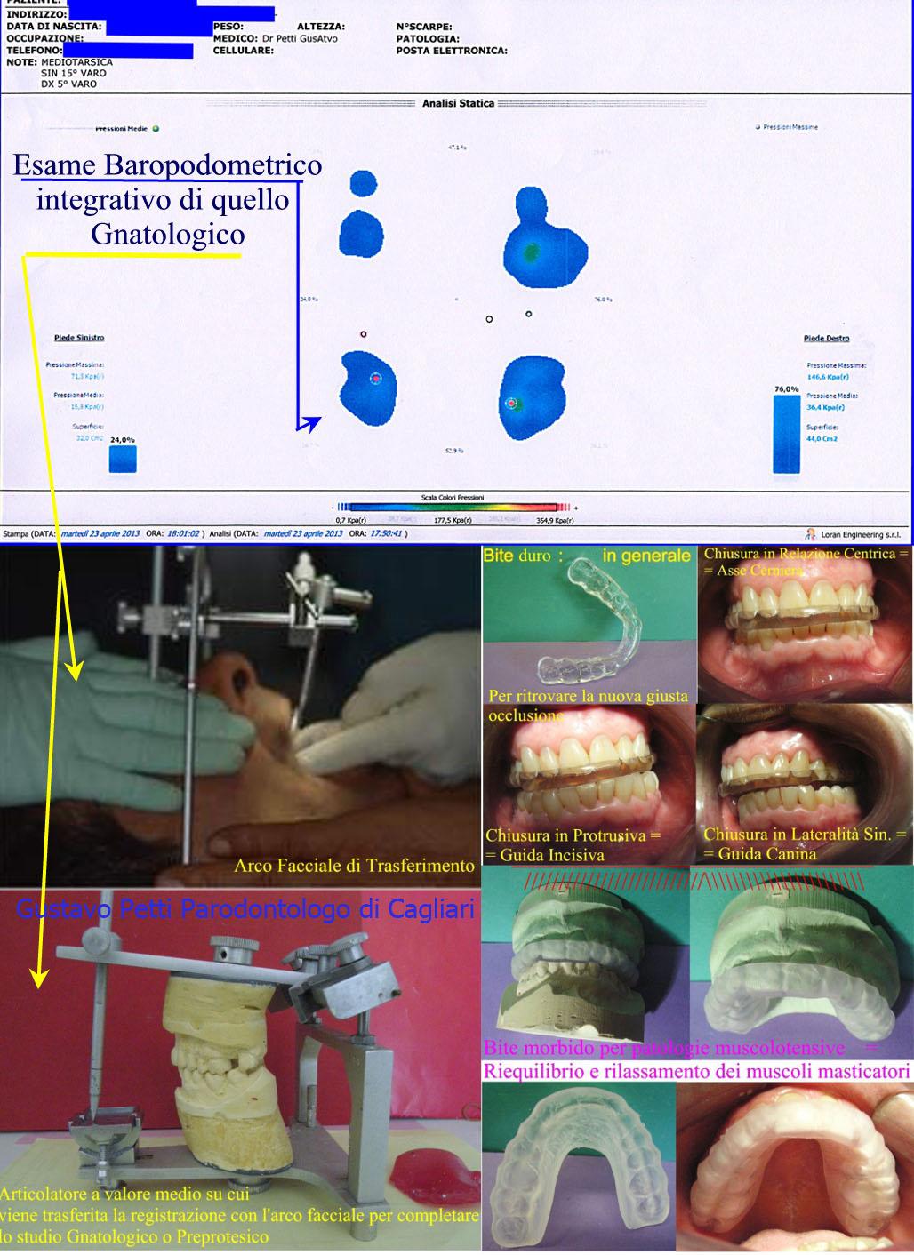Dr. Gustavo Petti Parodontologo Gnatologo Riabilitatore Orale in Casi Clinici Complessi, di Cagliari. Parte di Esame Gnatologico con Arco Facciale e Stabilometria Computerizzata e Vari tipi di Bite