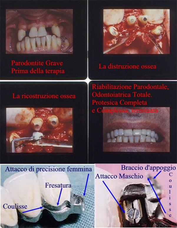 Riabilitazione Orale Completa con Chirurgia Parodontale ossea,  protesi mista fissa e rimovibile con attacchi di precisione fresature bracci di appoggio coulisse maschi e femmine in un caso di riabilitazione orale completa e complessa con qualità ossea molto compromessa ed inadatta a impianti