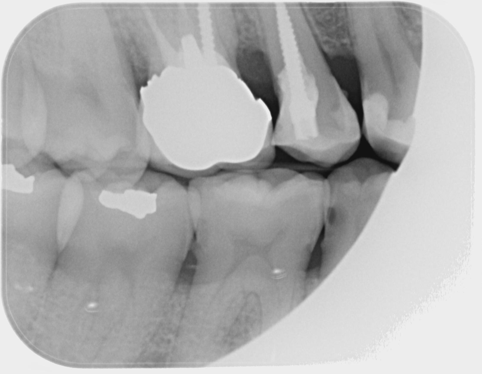 Il curettage potrebbe indebolire l'attaccatura dentale?