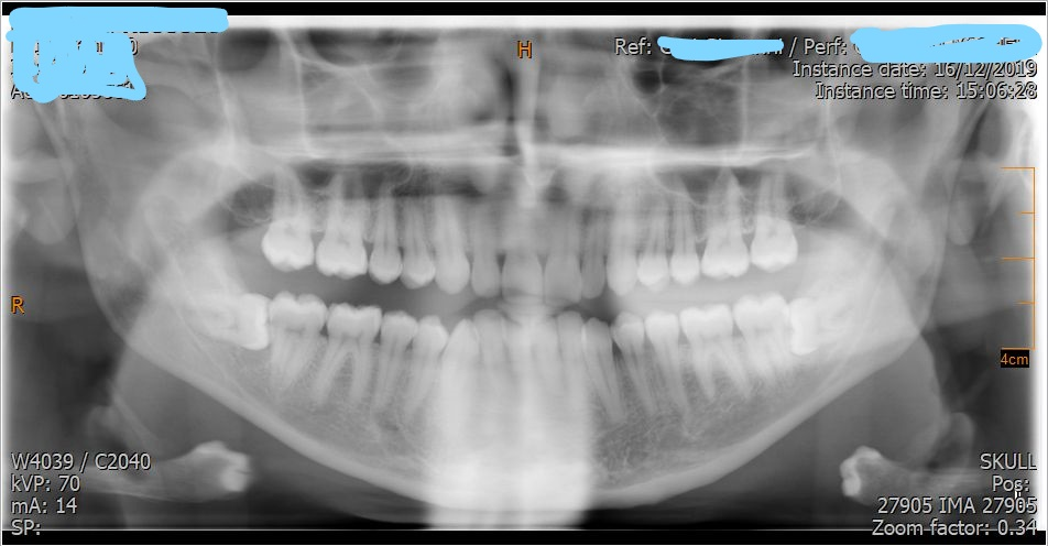 Quali rischi ci sono di ledere il nervo mandibolare?