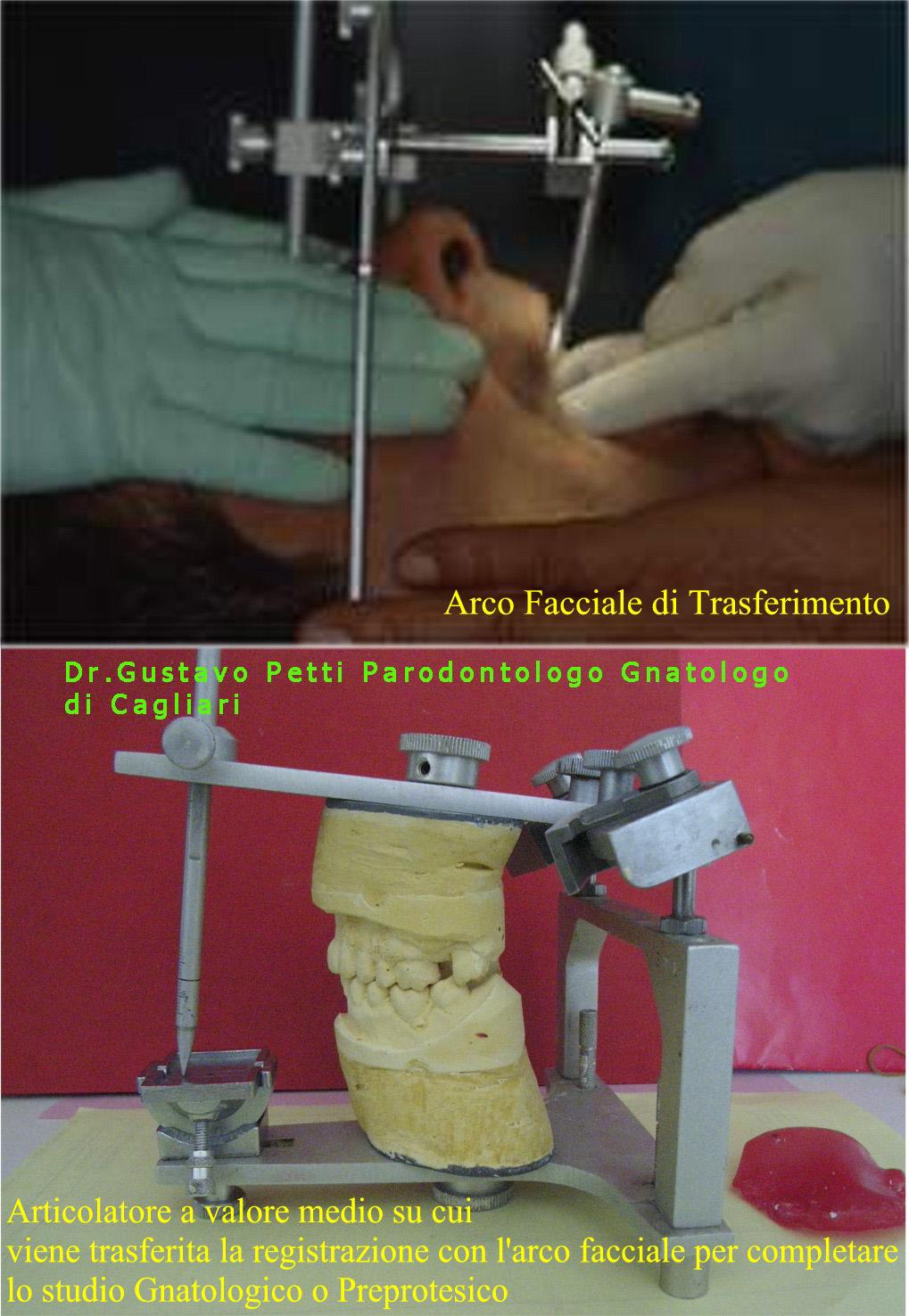 arco-facciale-dr.g.petti-ca-244-.jpg