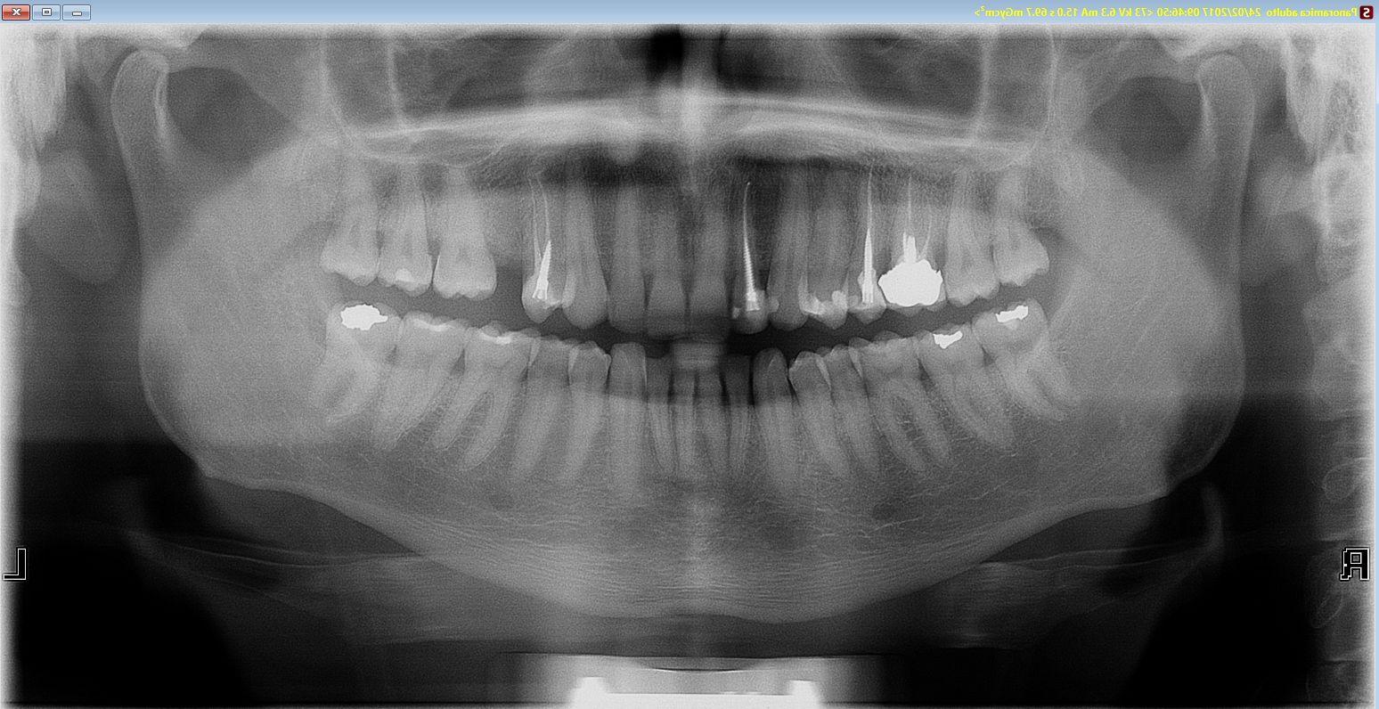 Circa sei mesi fa mi sono recato dal mio dentista per la frattura di un incisivo