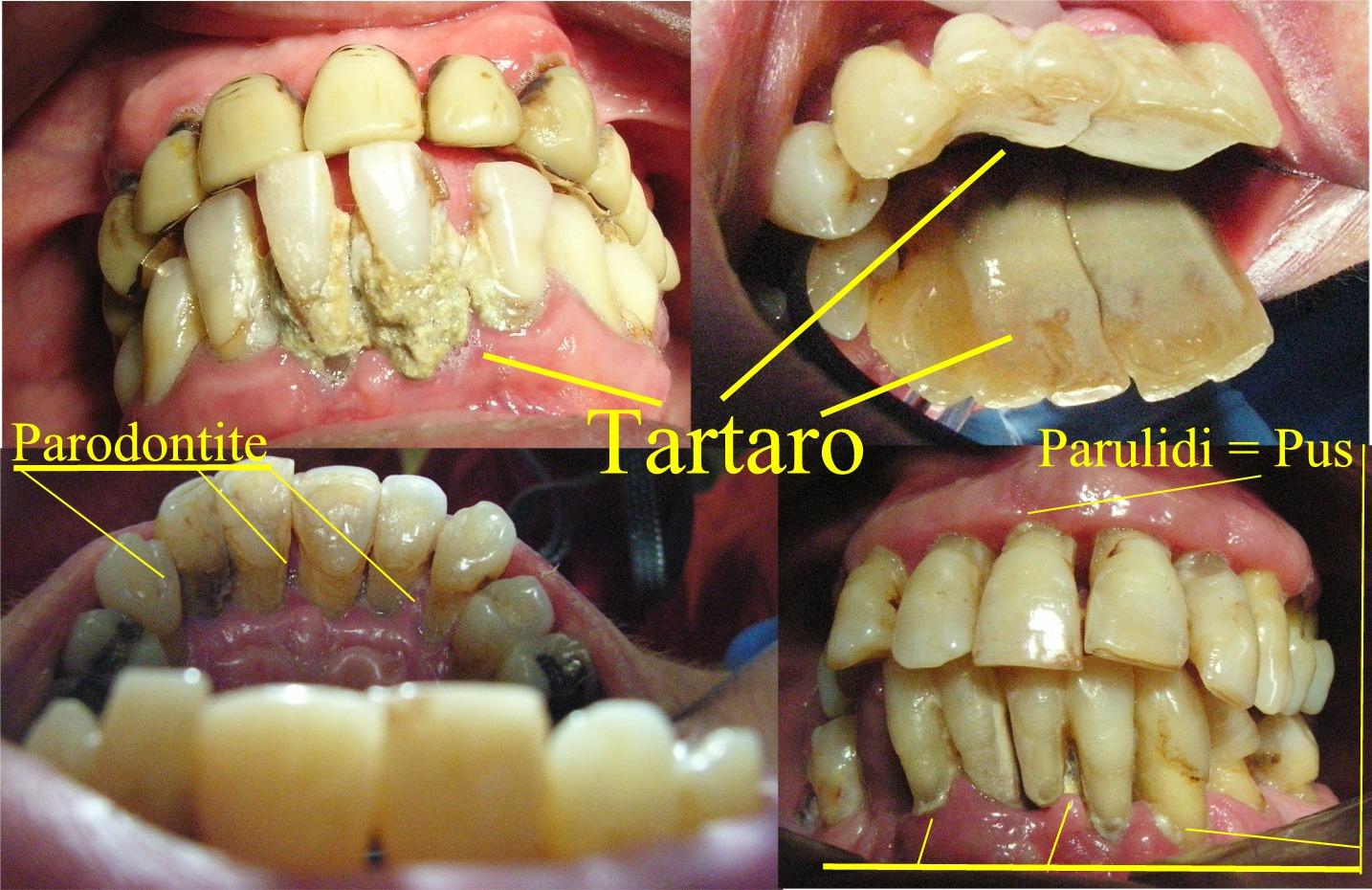 Tartaro in Parodontite prima della Pulizia dei denti e del Curettage e Scaling. Da casistica del Dr. Gustavo Petti Parodontologo di Cagliari