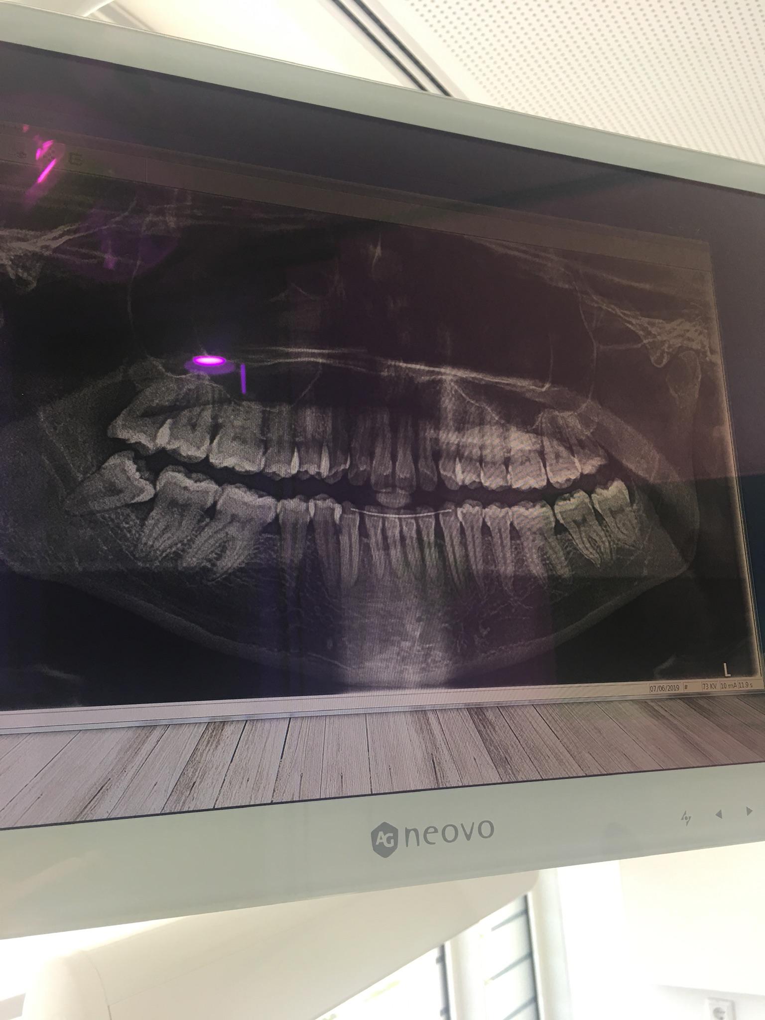 Problemi al dente del giudizio inferiore dx