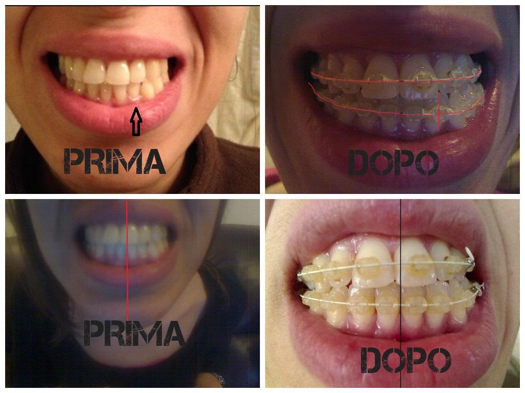 Vorrei avere il vostro parere a riguardo della mia cura ortodontica