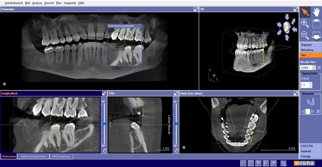 Da circa sei mesi ho problemi alla mandibola sinistra inferiore