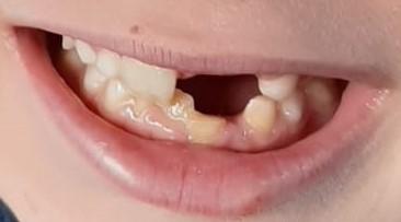 A Mio figlio 7 anni appena compiuti, a causa di un urto in bici alla bocca, si è rotto l'osso vestibolare