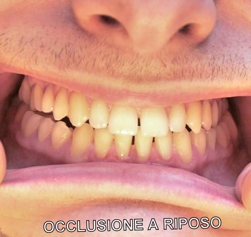 Vorrei correggere la posizione dei denti e della mandibola