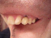 Retrazione gengivale o impianto dentale imperfetto?