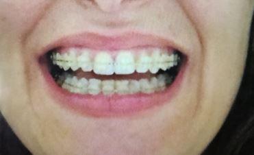 L'anno scorso ho deciso di mettere l'apparecchio per risolvere un problema di disallineamento e sovraffollamento dei denti