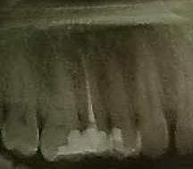 Volevo sapere se su questo dente c'è un altro granuloma...