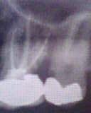 Devitalizzazione e ricostruzione dente cariato