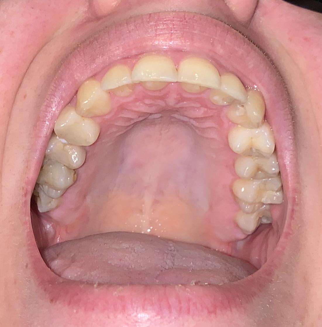 Il colore del palato e della lingua è nella norma?