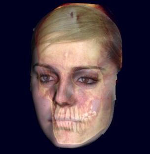 cefalometria-bennici-catania-.jpg