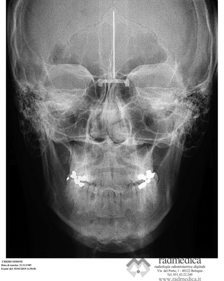 SEGUITO ALLA DOMANDA: Non sono convinto riguardo l'intervento maxillofacciale