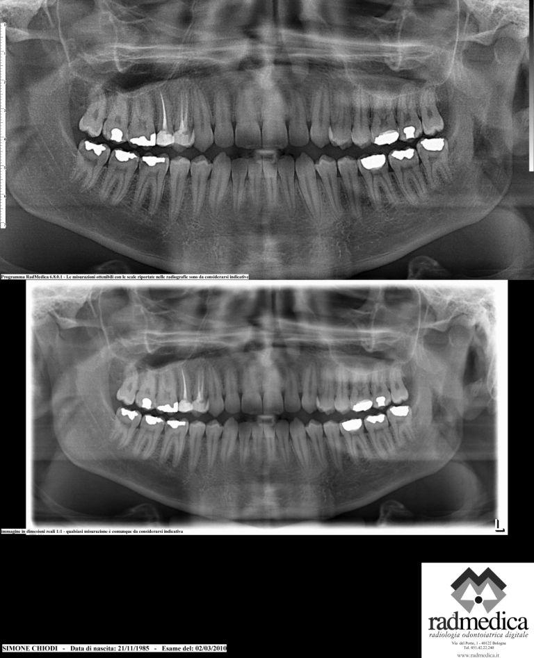 Ulteriore seguito alla domanda: Non sono convinto riguardo l'intervento maxillofacciale