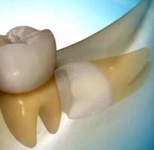 chirurgia-orale--bennici.jpg
