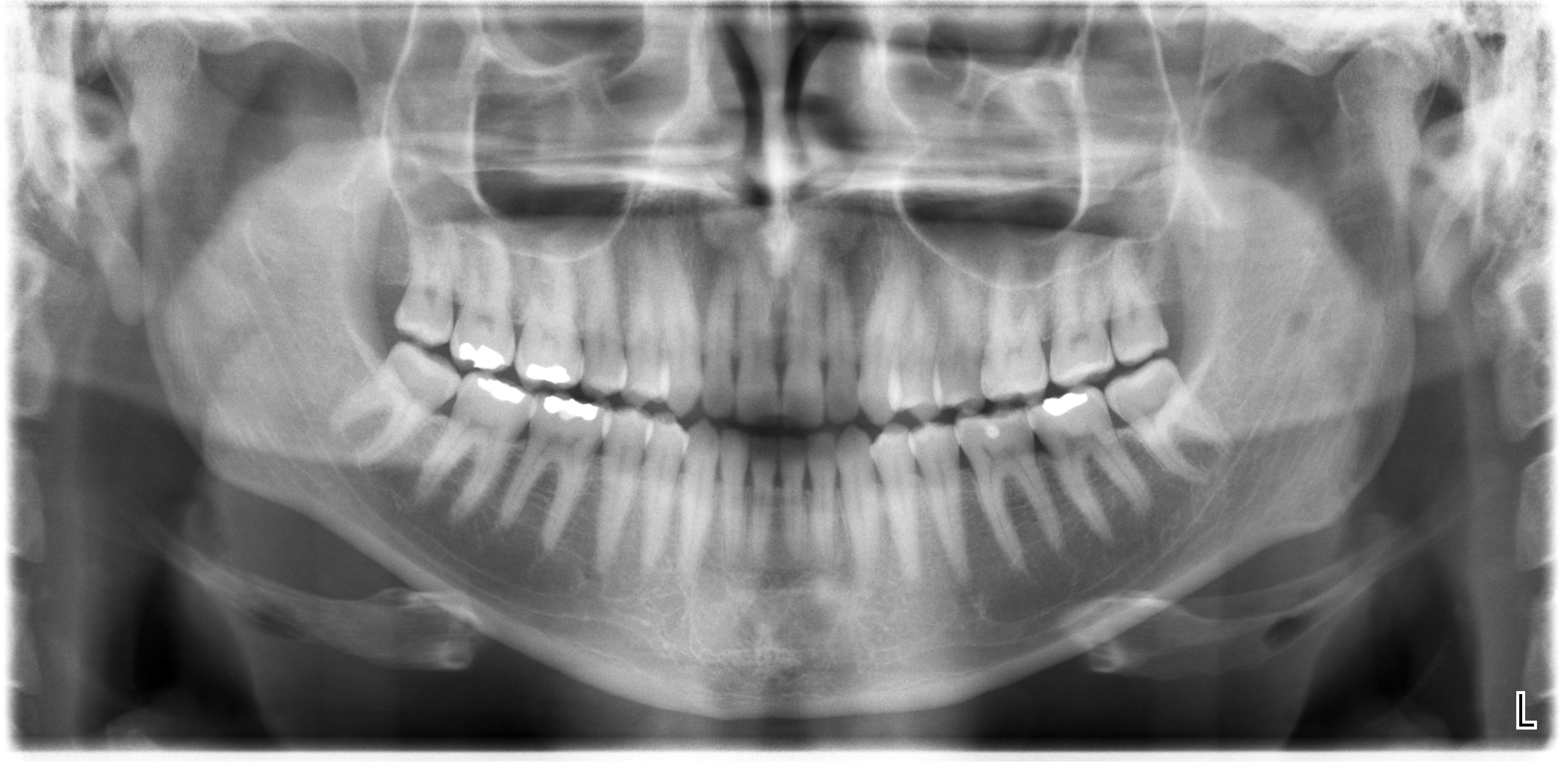 Dopo l'otturazione il dente ha iniziato a farmi male alla masticazione