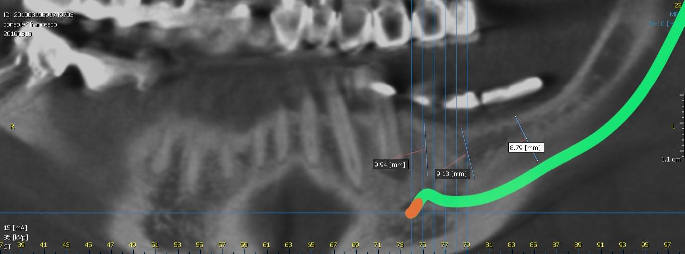 Tc cone beam dell'emiarcata inferire sinistra con dima radiologica con denti in solfato di bario.