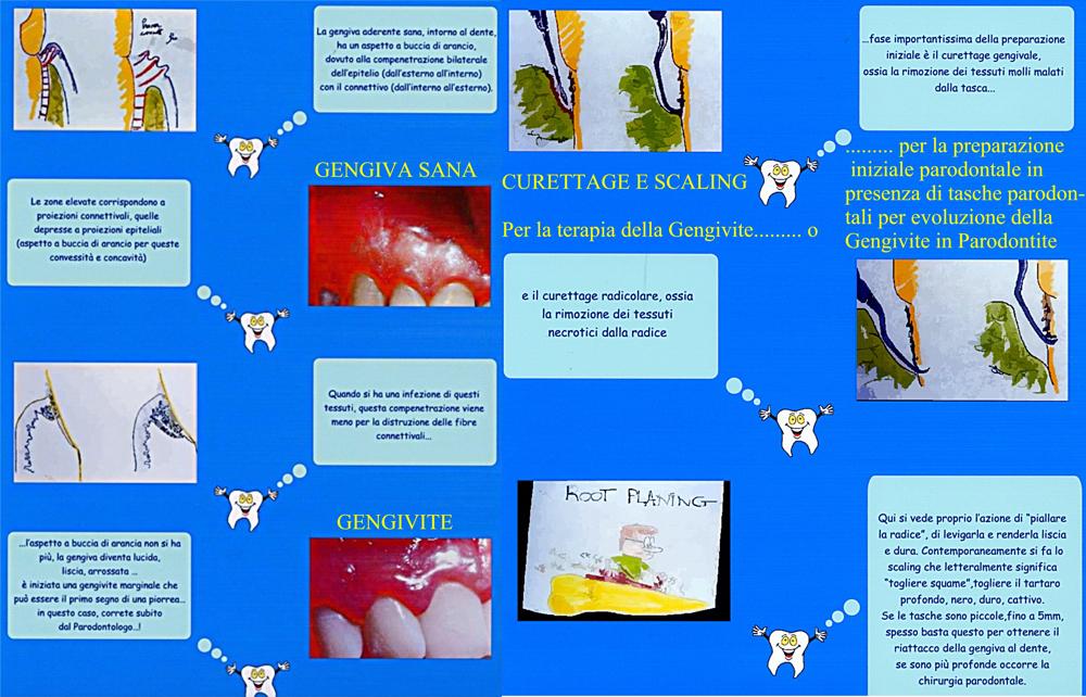 Poster che spiega la Gengivite ed il curettage e scaling per curarla e la formazione della tasca parodontale se non curata. Da Clinica del Dr. Gustavo Petti Parodontologo e Dr.ssa Claudia Petti Odontoiatra di Cagliari