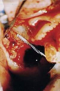 Fase di una plastica di chiusura di un pavimento del seno mascellare per sfondamento e comunicazione oroantrale durante una estrazione complessa. Da casistica chirurgica delò Dr. Gistavo Petti di Cagliari