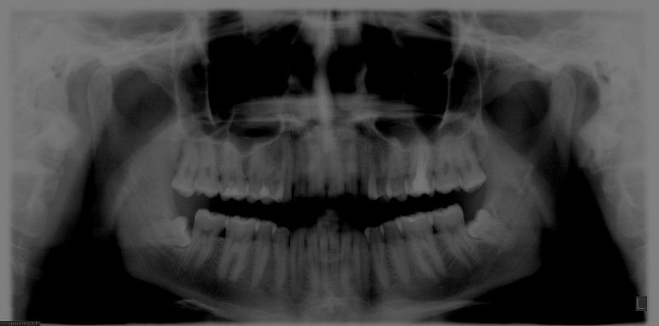 Ho i denti del giudizio inferiori inclusi ed orizzontali/inclinati.