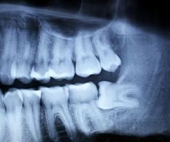 dente-del-giudizio-1.jpg