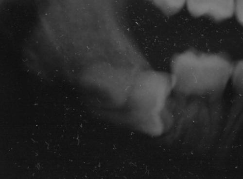 Ho il dente 48 che appare mesializzato e che comprime sul 47