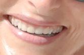 Ho un problema di abrasione dentale