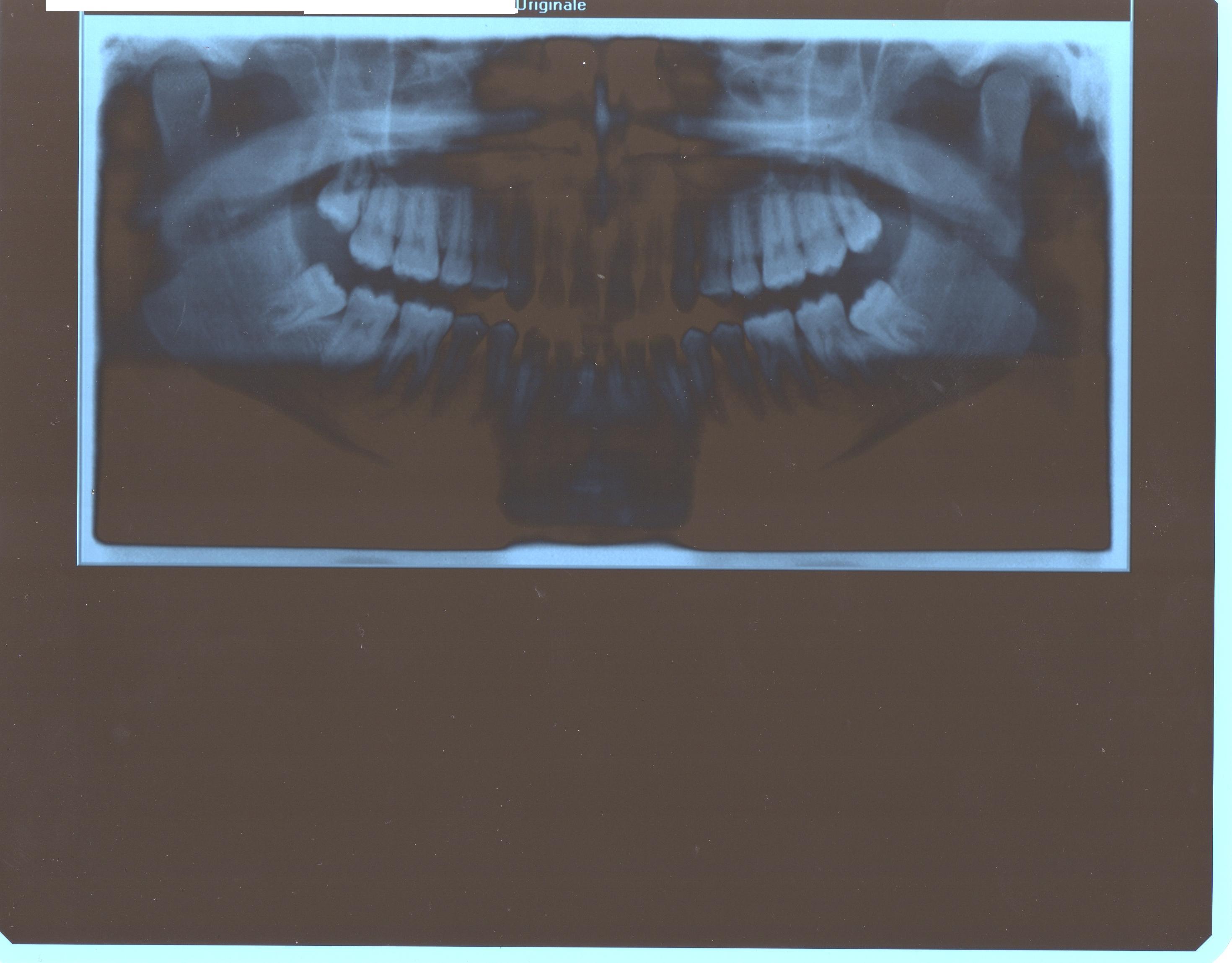 Vorrei eliminare gli antiestetici diastemi sull'arcata superiore ed in quella inferiore