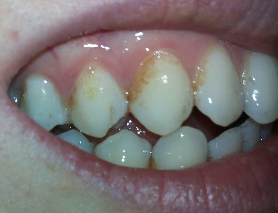 Macchie marroni sui denti