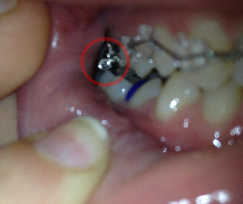 E' normale che le bande tocchino i denti corrispettivi?