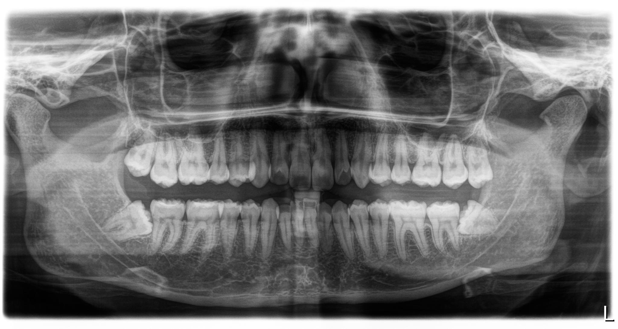 Secondo voi i denti del giudizio devo estrarli?