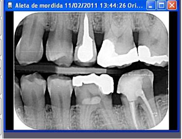 Vorrei la vostra opinione sul tema del dente devitalizzato come focolaio di infezione