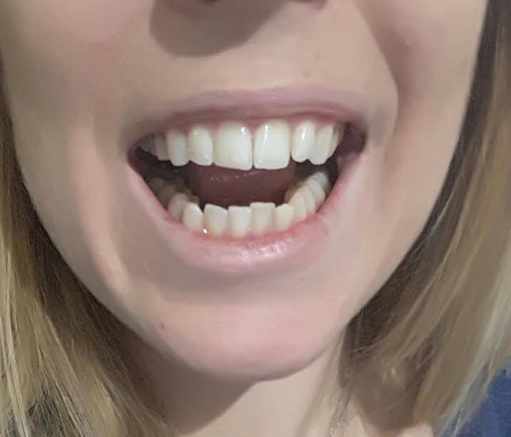 denti2cf.jpg