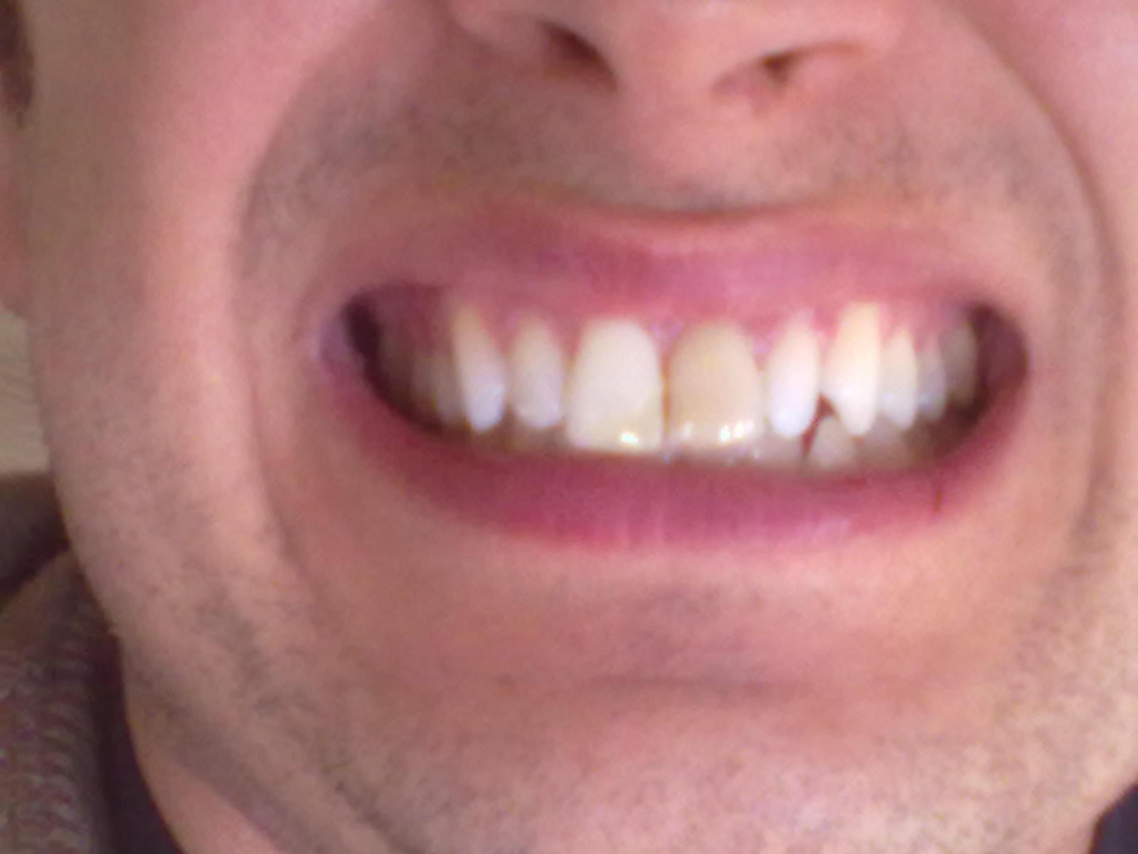 SEGUITO ALLA DOMANDA: Che soluzione posso adottare nel ricostruire il dente ancora vitale e sbiancare quello necrotico?