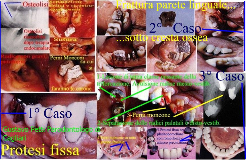 Dr. Gustavo Petti Parodontologo Gnatologo riaqbilitatore orale in Casi Clinici Complessi, di Cagliri.Denti veramente molto compromessi nella loro struttura e salvati curandoli Parodontalmente, conservativamente, endodonticamente e con perni  moncone e corone protesiche, come esempio di strutture mol
