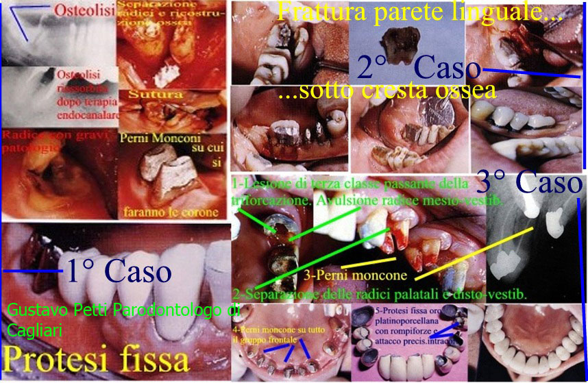 Dr. Gustavo Petti Parodontologo Gnatologo Riabilitatore Oarle in Casi Clinici Complessi, di Cagliari.Denti veramente molto compromessi anche con osteolisi e curati ed in bocca dopo oltre 25-30 anni a dimostrazione che i denti si curano e non si estraggono.