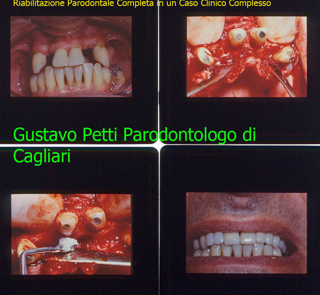Dr. Gustavo Petti Parodontologo Gnatologo Riabilitatore in Casi Clinici Complessi, di Cagliari. Parodontite e Riabilitazione Orale Completa. Come esempio!