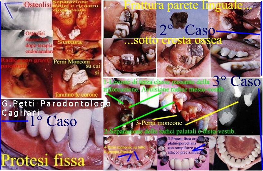 dr.petti-gustavo-ca-fratture-denti-.jpg