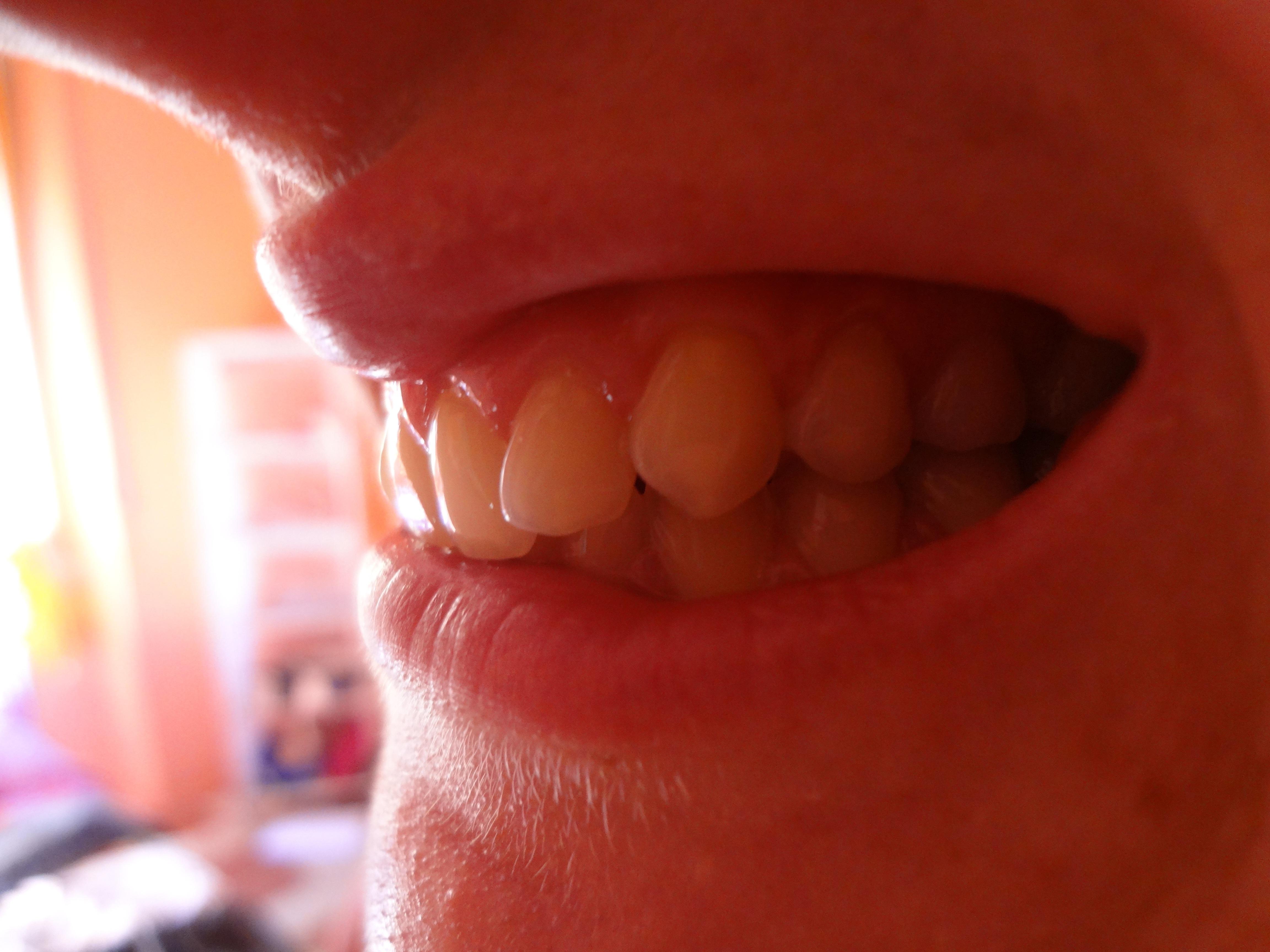Denti fortemente affollati e morso profondo